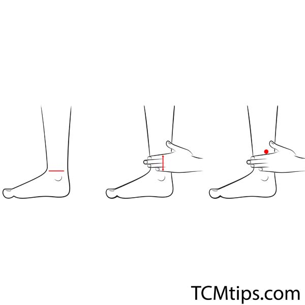 The Sanyinjiao and Yin Ling Quan Acupuncture Points